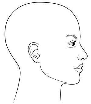 Perücken bei hormonell bedingtem Haarausfall