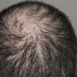 Hormonell bedingter Haarausfall Perücken Wellkamm