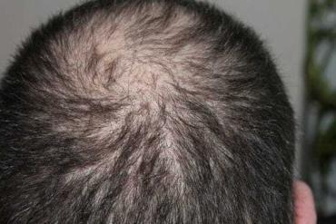 Frisur nach Beendigung der Chemotherapie